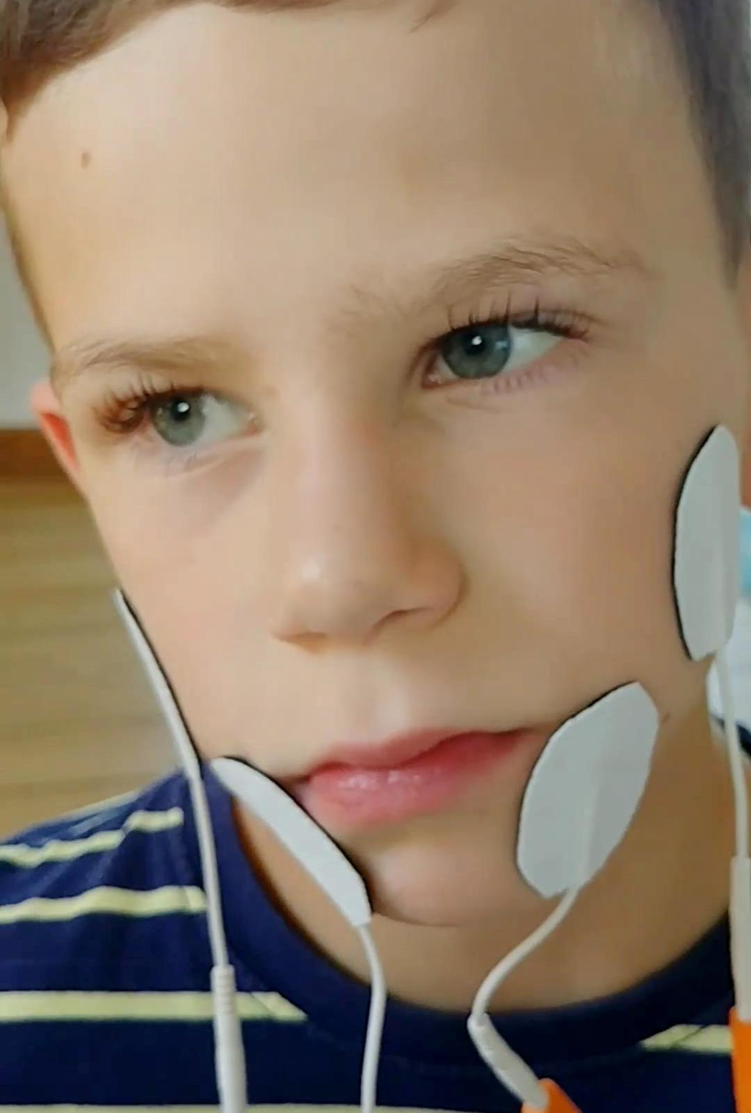 Elektrostymulacja mięśni twarzy – nowoczesne terapie w Centrum Rehabilitacji Libold.