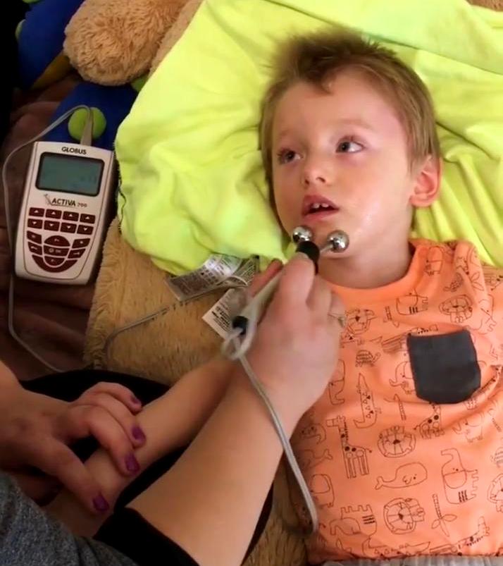 Elektrostymulacja U Dzieci Stymulacja=miesni Twarzy Mikropradami Activia700 Globus