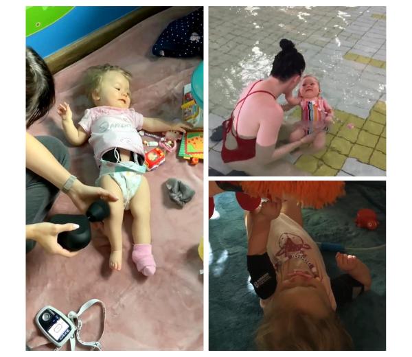 Terapia Dziecka Z Rdzeniowym Zanikiem Miesni Sma Protokul Rehabilitacyjny W Centrum Rehabilitacji Libold.jpg